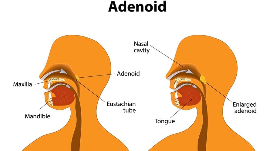 что такое аденоиды?